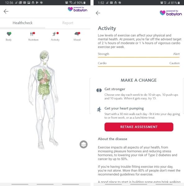 Tällä tavalla AI voi muuttaa tapaamme tarkastella terveyttä 2