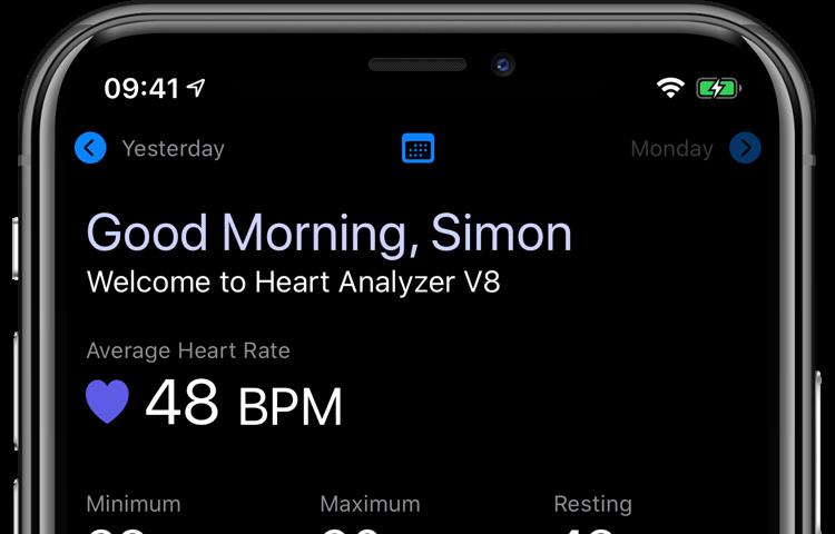 O Heart Analyzer adiciona suporte ao modo escuro, um aplicativo Watch aprimorado, novas análises e dados e muito mais 2